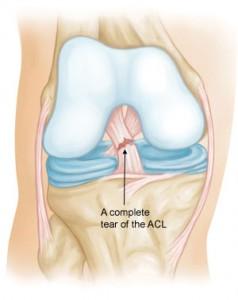 ACL Tear