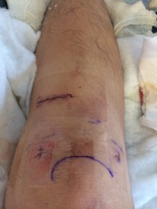 My ACL Surgery wound