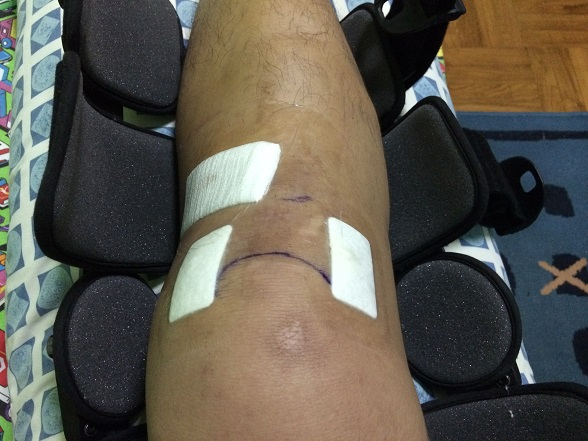 "ACL wound nicely ""dressed up"""