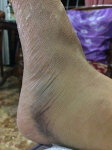 Bruise on ankle after ACL surgery