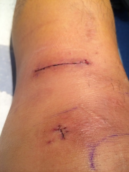 ACL surgery wound stitches free